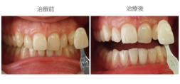 牙齒美白03