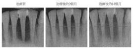 牙周再生術-案例01