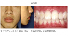 牙齒矯正配合手術-案例2-1