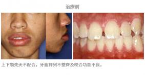 牙齒矯正配合手術-案例2