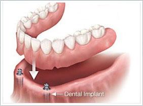 C2 植體覆蓋式牙托