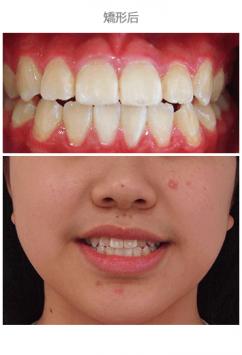 牙齒整齊排列-案例8-2