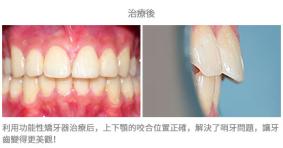 牙齒整齊排列-案例5-1