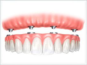 A1 植體支持式全口固定牙橋