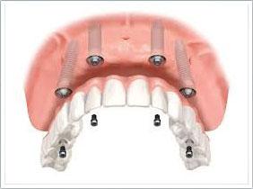 A2 植體支持式全口固定牙橋