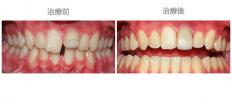 矯牙配合其他治療-案例3