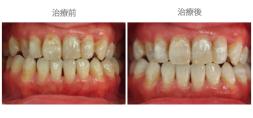 牙齒美白02