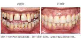矯牙配合其他治療-案例1