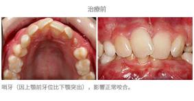 牙齒整齊排列-案例6