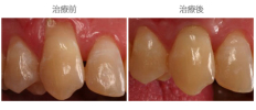 牙齦覆蓋術-案例04