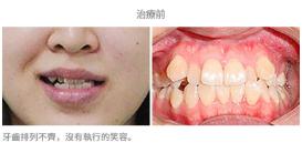 牙齒整齊排列-案例1