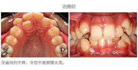 牙齒整齊排列-案例4