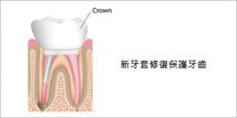 牙椿和牙套02
