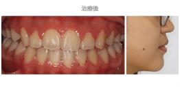 牙齒整齊排列-案例10-1