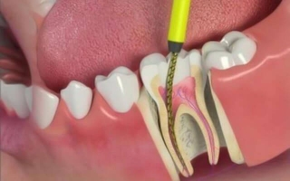 7.3 Root Canal Therapy