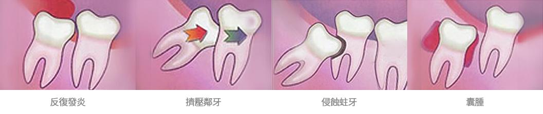 口腔手術01-2